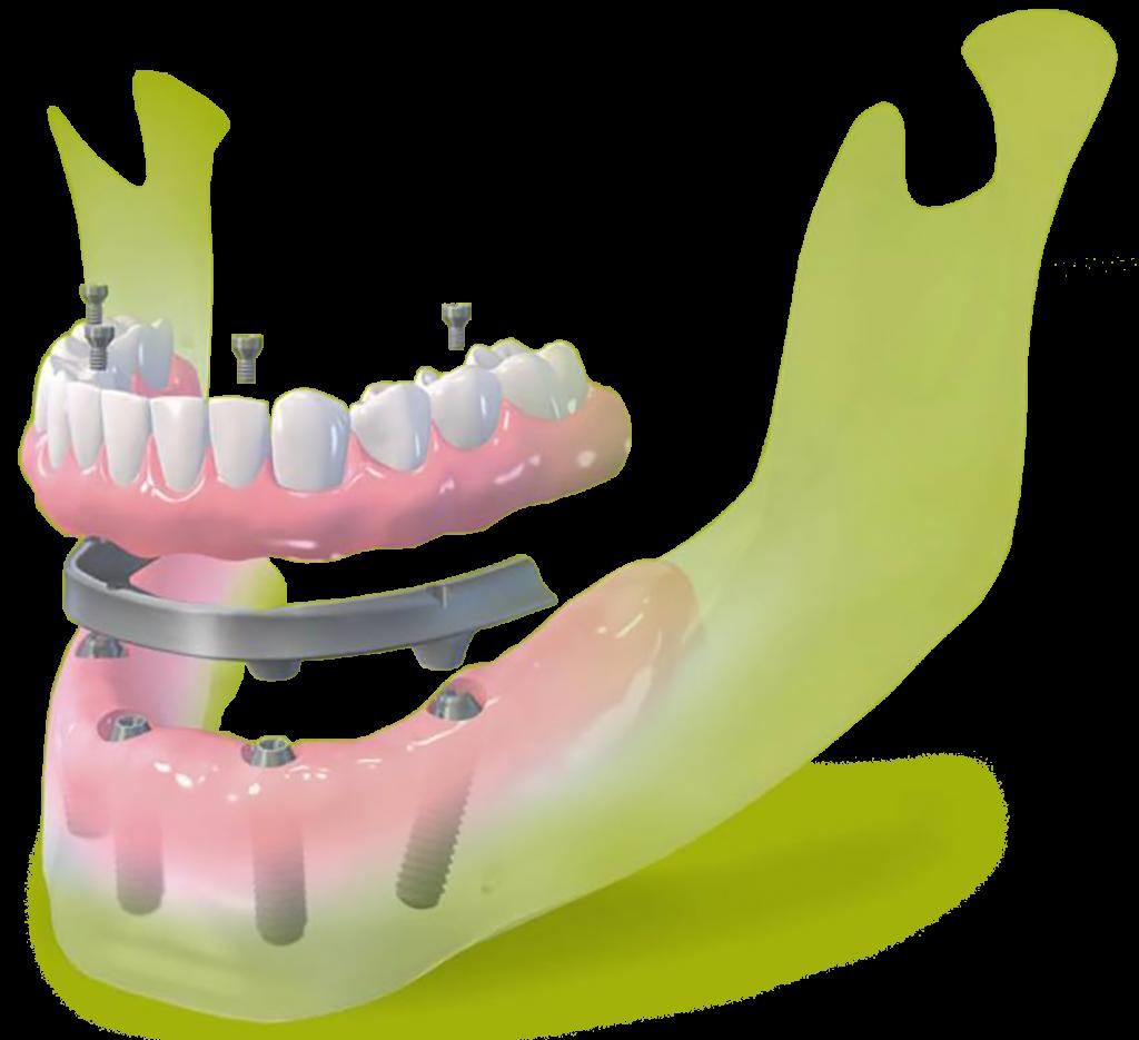 all on four dental implants Straumann